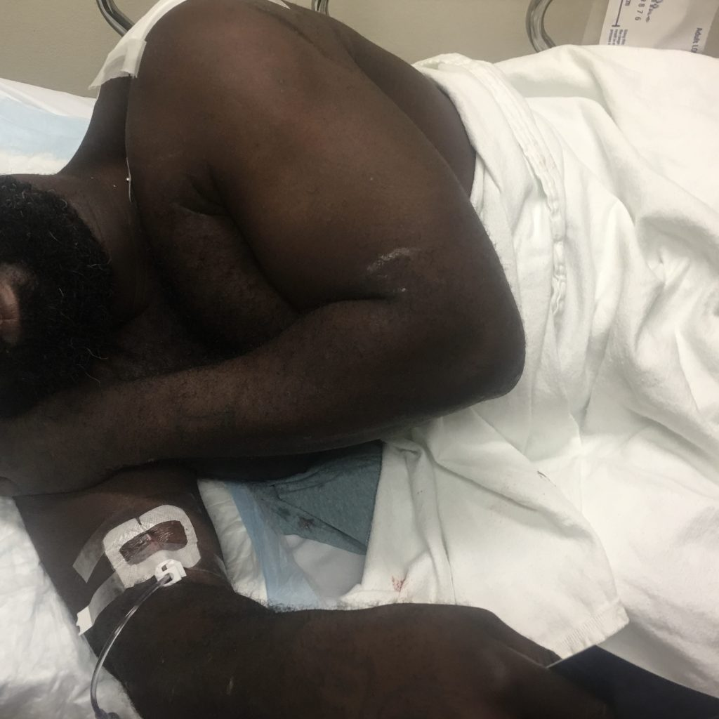 real client in emergency room after being it by a car while riding a bike in Houston